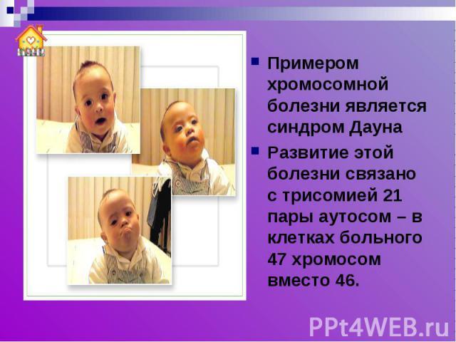 Примером хромосомной болезни является синдром ДаунаРазвитие этой болезни связано с трисомией 21 пары аутосом – в клетках больного 47 хромосом вместо 46.