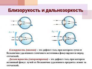 Близорукость и дальнозоркость Близорукость (миопия) – это дефект глаз, при котор