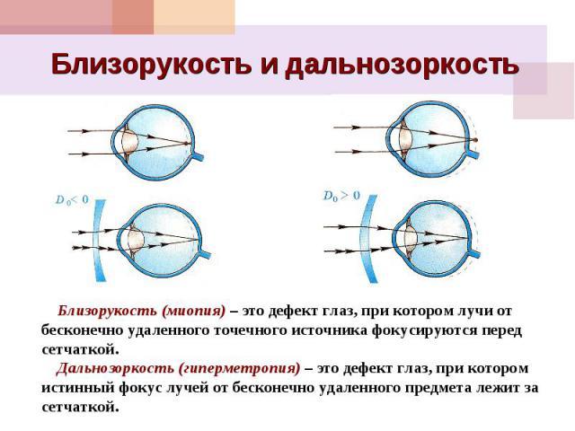 Близорукость и дальнозоркость Близорукость (миопия) – это дефект глаз, при котором лучи от бесконечно удаленного точечного источника фокусируются перед сетчаткой. Дальнозоркость (гиперметропия) – это дефект глаз, при котором истинный фокус лучей от …