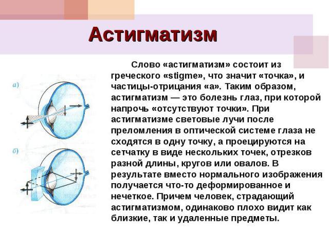 Астигматизм Слово «астигматизм» состоит из греческого «stigme», что значит «точка», и частицы-отрицания «а». Таким образом, астигматизм — это болезнь глаз, при которой напрочь «отсутствуют точки». При астигматизме световые лучи после преломления в о…