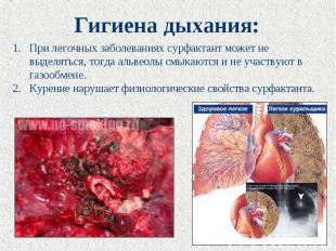 Гигиена дыхания: При легочных заболеваниях сурфактант может не выделяться, тогда