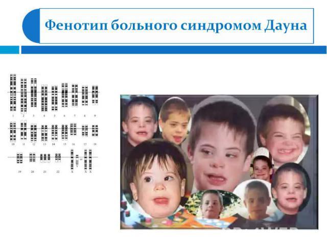 Фенотип больного синдромом Дауна