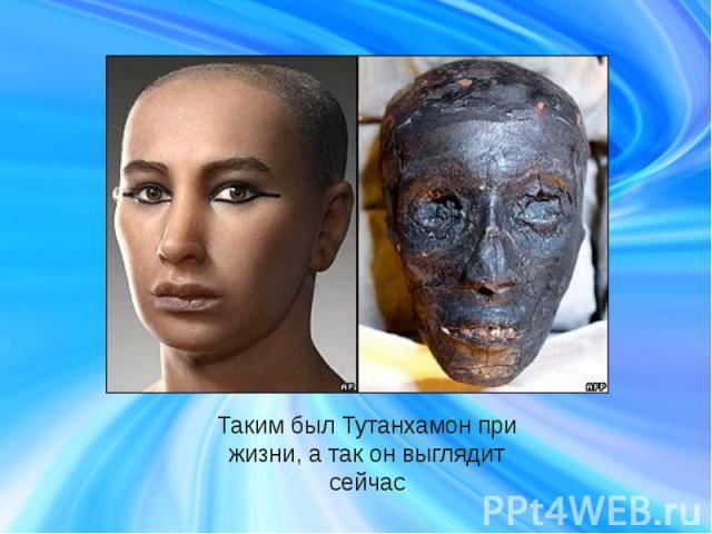 Таким был Тутанхамон при жизни, а так он выглядит сейчас