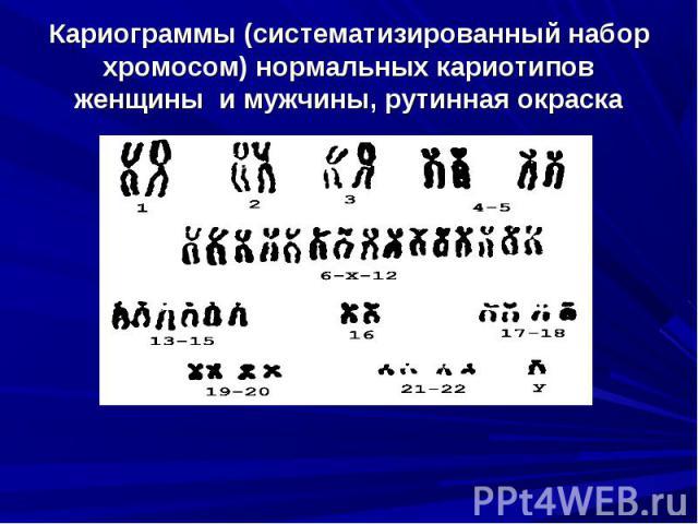 Кариограммы (систематизированный набор хромосом) нормальных кариотипов женщины и мужчины, рутинная окраска