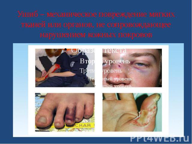 Ушиб – механическое повреждение мягких тканей или органов, не сопровождающее нарушением кожных покровов