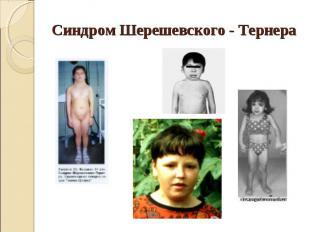 Синдром Шерешевского - Тернера