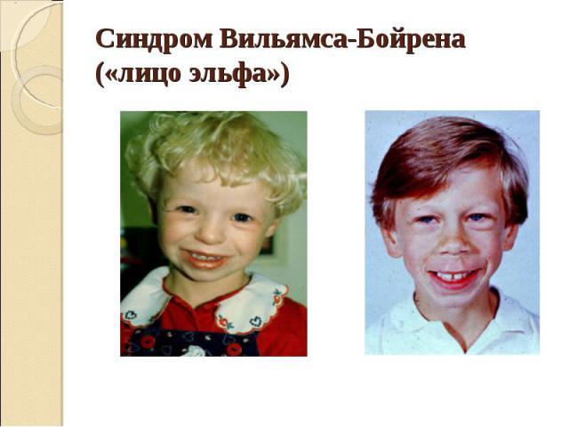 Синдром Вильямса-Бойрена («лицо эльфа»)