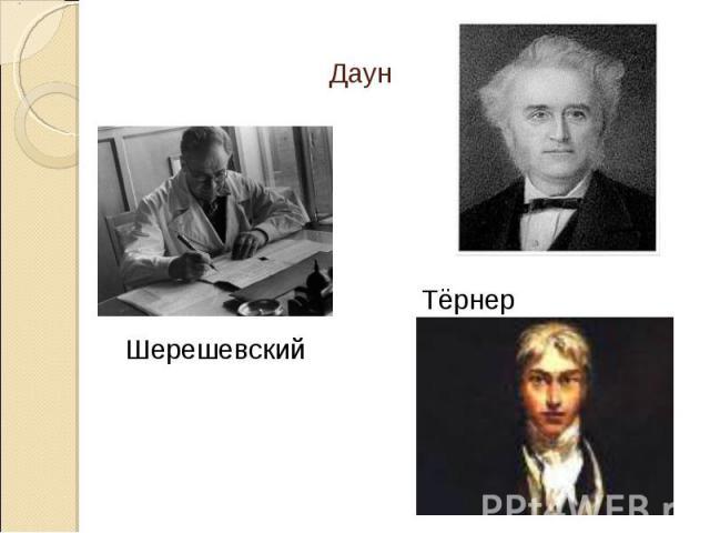 ДаунШерешевский Тёрнер