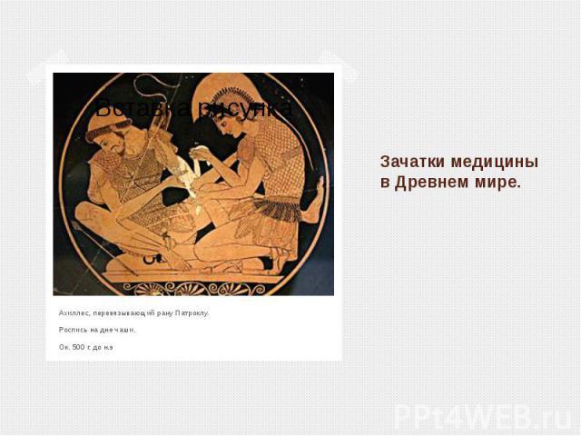 Зачатки медицины в Древнем мире.Ахиллес, перевязывающий рану Патроклу. Роспись на дне чаши. Ок. 500 г. до н.э