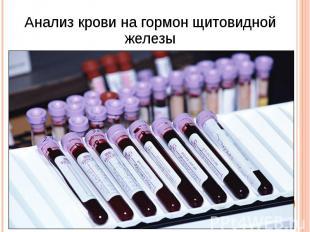 Анализ крови на гормон щитовидной железы