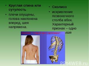 Круглая спина или сутулостьплечи опущены, голова наклонена вперед, шея напряжена