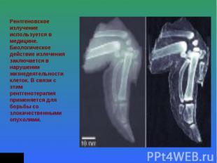 Рентгеновское излучение используется в медицине. Биологическое действие излечени