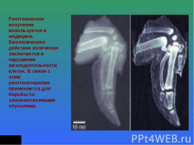 Рентгеновское излучение используется в медицине. Биологическое действие излечения заключается в нарушении жизнедеятельности клеток. В связи с этим рентгенотерапия применяется для борьбы со злокачественными опухолями.