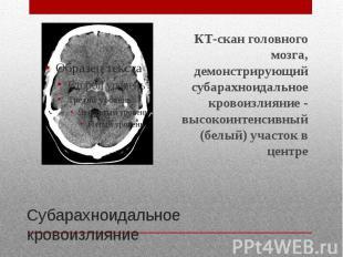 Субарахноидальное кровоизлияние КТ-скан головного мозга, демонстрирующий субарах