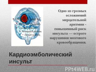 Кардиоэмболический инсульт Одно из грозных осложнений мерцательной аритмии