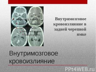 Внутримозговое кровоизлияние Внутримозговое кровоизлияние в задней черепной ямке