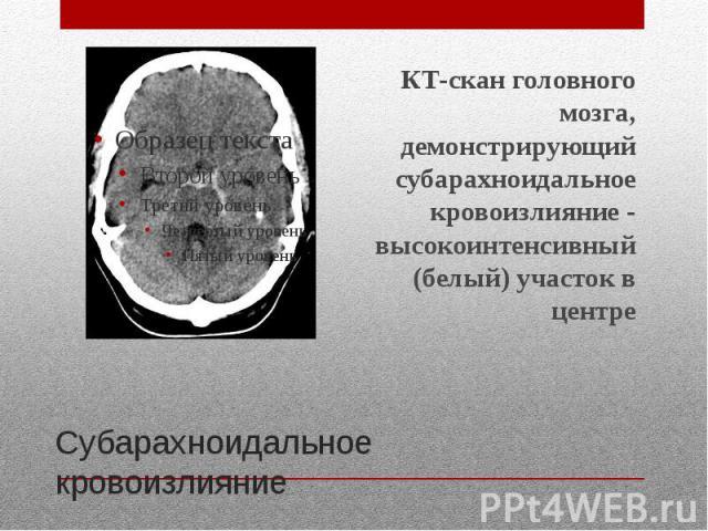 Субарахноидальное кровоизлияние КТ-скан головного мозга, демонстрирующий субарахноидальное кровоизлияние - высокоинтенсивный (белый) участок в центре