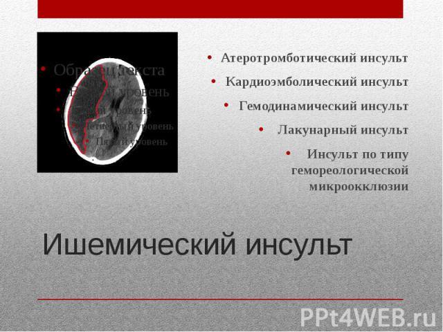 Ишемический инсульт Атеротромботический инсульт Кардиоэмболический инсульт Гемодинамический инсульт Лакунарный инсульт Инсульт по типу гемореологической микроокклюзии