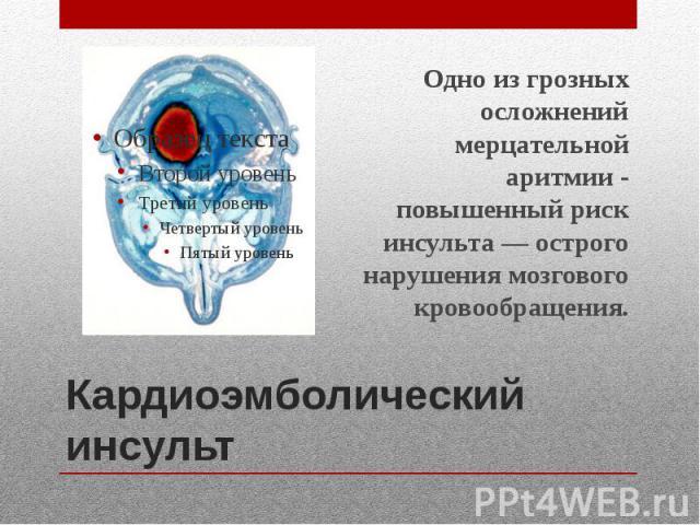 Кардиоэмболический инсульт Одно из грозных осложнений мерцательной аритмии - повышенный риск инсульта — острого нарушения мозгового кровообращения.