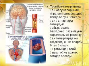 Тромбоз-тамыр ішінде қан жасушаларынан тұратын қатпарлардың пайда болуы.Кемерлік
