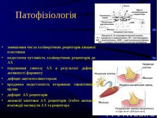зменшення числа холінергічних рецепторів кінцевої пластинки недостатня чутливіст