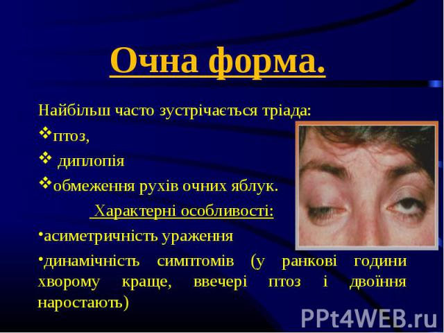 Найбільш часто зустрічається тріада: Найбільш часто зустрічається тріада: птоз, диплопія обмеження рухів очних яблук. Характерні особливості: асиметричність ураження динамічність симптомів (у ранкові години хворому краще, ввечері птоз і двоїння наро…