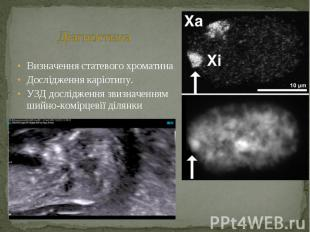 Визначення статевого хроматина Визначення статевого хроматина Дослідження каріот