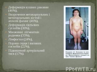 Деформація вушних раковин (46%), Деформація вушних раковин (46%), Вкорочення мет
