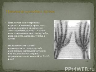 Патологічне синостозірування відмічаєтся в метаепіфізарних зонах скелета, поодин