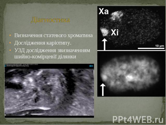 Визначення статевого хроматина Визначення статевого хроматина Дослідження каріотипу. УЗД дослідження звизначенням шийно-комірцевії ділянки