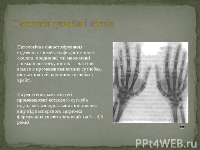 Патологічне синостозірування відмічаєтся в метаепіфізарних зонах скелета, поодинокі чи множеинні аномалії розвитку кісток — частіше всього в променевозапястних суглобах, кістках кистей, колінних суглобах і хребті. На рентгенограмі кистей і променево…