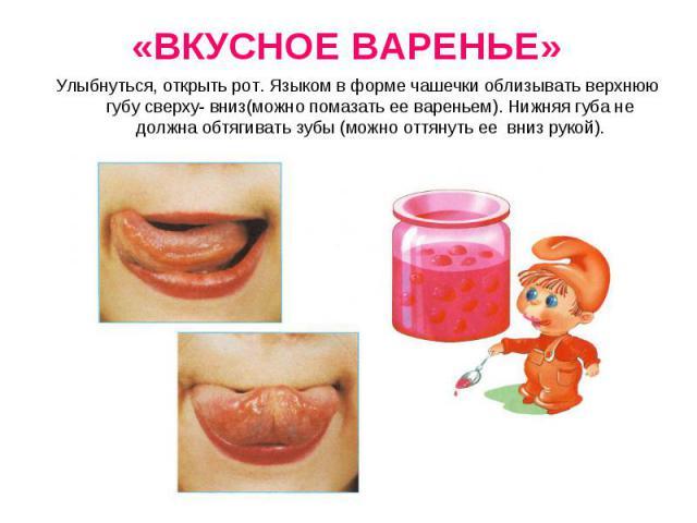 Улыбнуться, открыть рот. Языком в форме чашечки облизывать верхнюю губу сверху- вниз(можно помазать ее вареньем). Нижняя губа не должна обтягивать зубы (можно оттянуть ее вниз рукой).Улыбнуться, открыть рот. Языком в форме чашечки облизывать верхнюю…