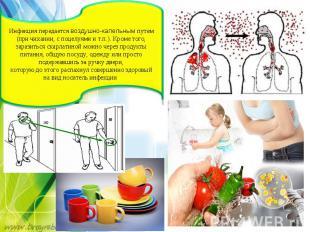 Инфекция передаетсявоздушно-капельнымпутем (при чихании, споцелуями ит.п.).