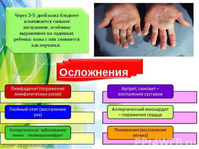 Через3-5дней кожа бледнеет иначинается сильное шелушение, особенно выраженное наладошках ребенка: кожа сних снимается как перчатки.