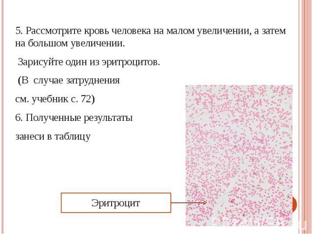 5. Рассмотрите кровь человека на малом увеличении, а затем на большом увеличении. 5. Рассмотрите кровь человека на малом увеличении, а затем на большом увеличении. Зарисуйте один из эритроцитов. (В случае затруднения см. учебник с. 72) 6. Полученные…