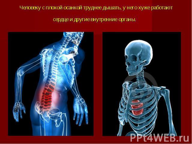 Человеку с плохой осанкой труднее дышать, у него хуже работают сердце и другие внутренние органы.
