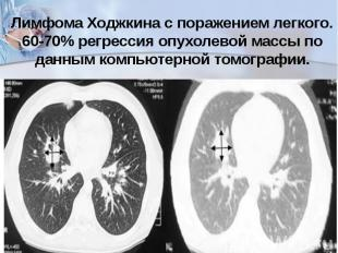 Лимфома Ходжкина с поражением легкого. 60-70%регрессия опухолевой массы по