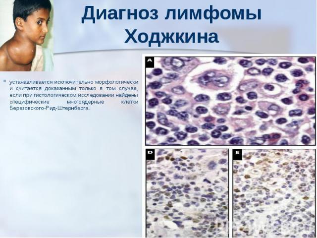 Диагноз лимфомы Ходжкина устанавливается исключительно морфологически и считается доказанным только в том случае, если при гистологическом исследовании найдены специфические многоядерные клетки Березовского-Рид-Штернберга.