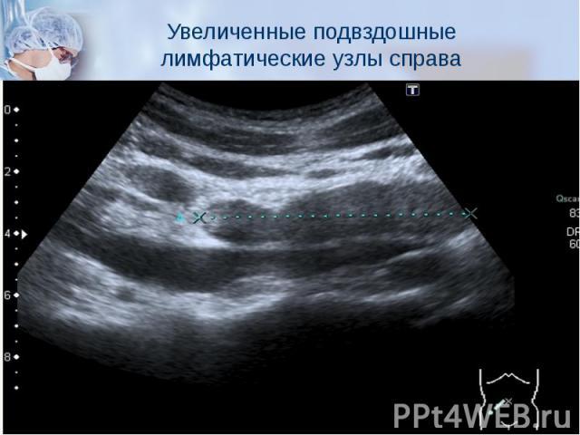 Увеличенные подвздошные лимфатические узлы справа