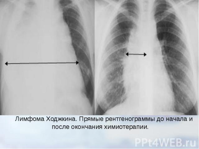 Лимфома Ходжкина. Прямые рентгенограммыдо начала и после окончания химиотерапии.