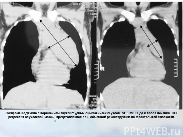 Лимфома Ходжкина с поражением внутригрудных лимфатических узлов. МПР МСКТ до и после лечения. 80% регрессия опухолевой массы, представленная приобъемной реконструкции во фронтальной плоскости.