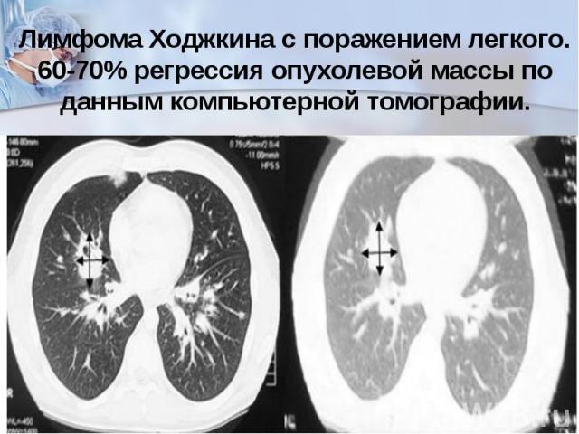 Лимфома Ходжкина с поражением легкого. 60-70%регрессия опухолевой массы по данным компьютерной томографии.