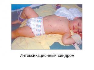 Интоксикационный синдром Интоксикационный синдром