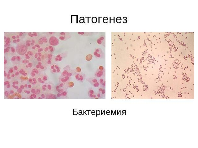 Патогенез Бактериемия