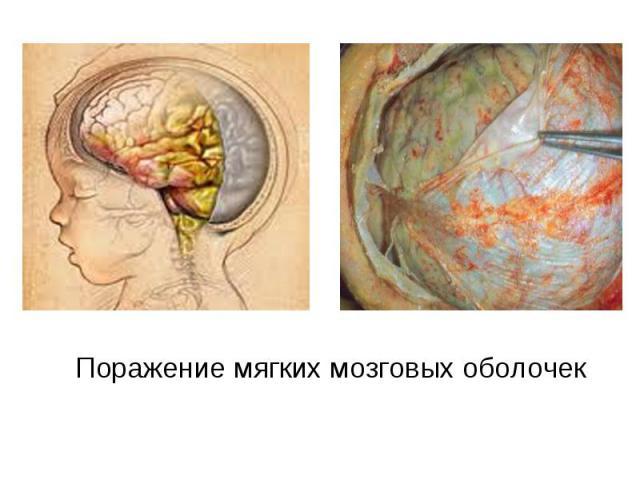 Поражение мягких мозговых оболочек Поражение мягких мозговых оболочек