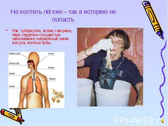 Не коптить лёгкие – так в историю не попасть Рак, туберкулез, астма, гангрена, язва, сердечно-сосудистые заболевания, неприятный запах изо рта, желтые зубы.