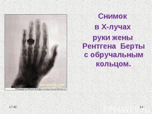 Снимок в Х-лучах руки жены Рентгена Берты с обручальным кольцом.