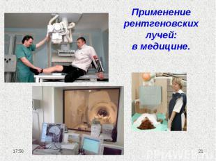 Применение рентгеновских лучей:в медицине.