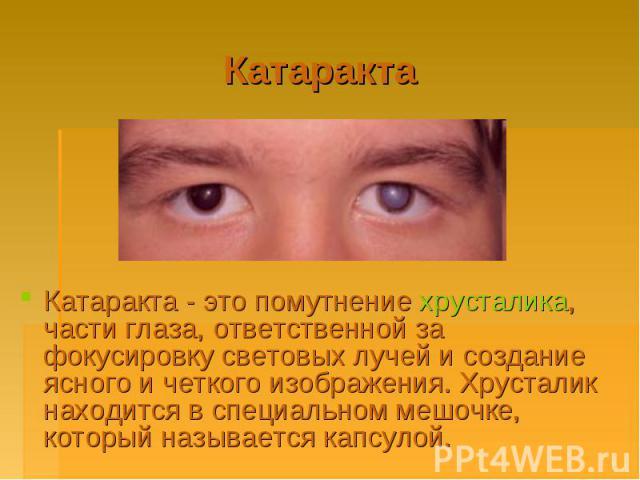Катаракта Катаракта - это помутнение хрусталика, части глаза, ответственной за фокусировку световых лучей и создание ясного и четкого изображения. Хрусталик находится в специальном мешочке, который называется капсулой.