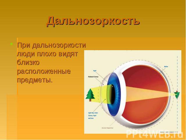 Дальнозоркость При дальнозоркости люди плохо видят близко расположенные предметы.